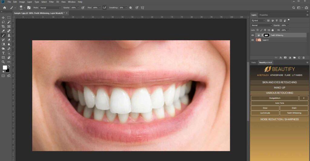 teeth whitening final look